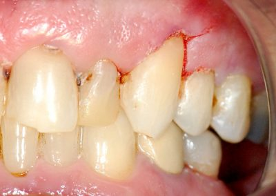 Cavity After