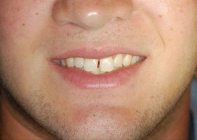 Cosmetic Bonding Diastema Before
